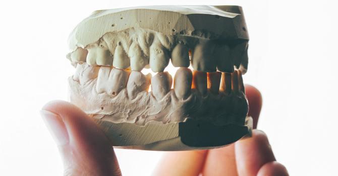 Can Chiropractors Treat TMJ Pain (Temporomandibular Joint) or TMD? image